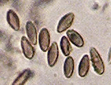 Microphotograph of spores of unlichenized fungus, Mycocalicium subtile